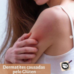 Dermatites Causadas Pelo Glúten